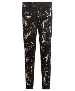 ÉTUDES | Locomotion Bleached Skinny Jeans