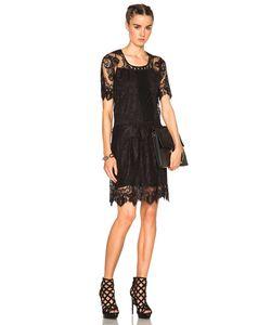 Burberry Prorsum | Chantilly Lace Dress