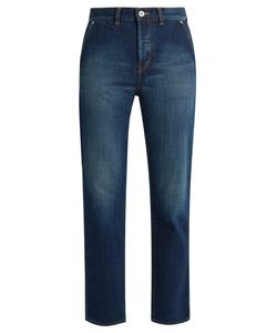 Muveil | Bow-Pockets Straight-Leg Cropped Jeans